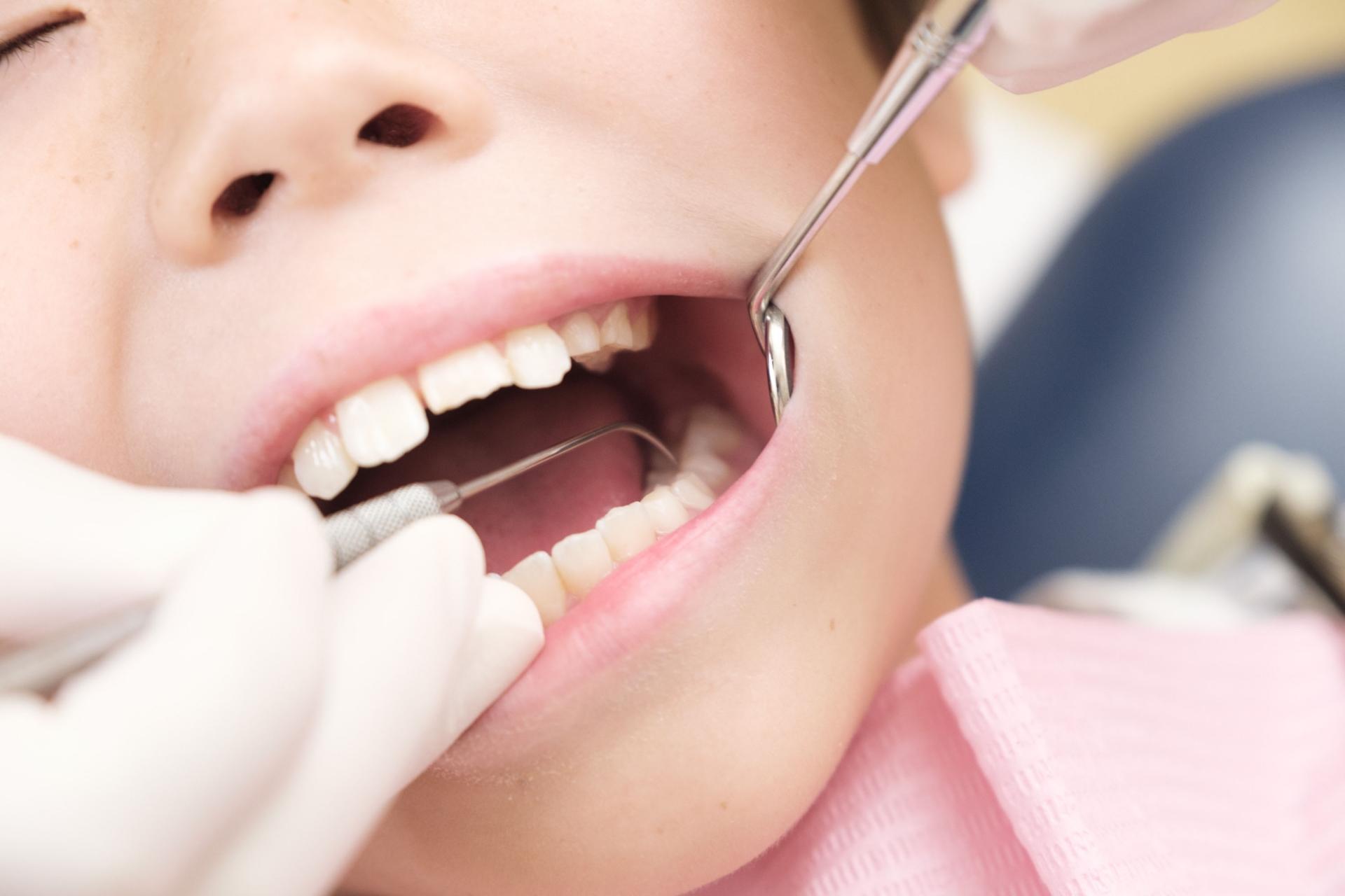 子どもの虫歯の原因