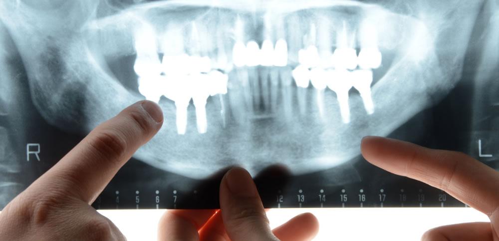 骨が少なくても治療可能