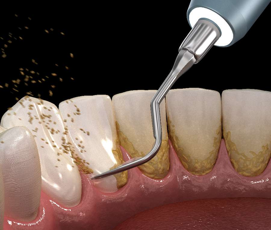 訪問歯科の流れ