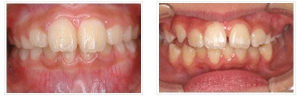 お子様の矯正歯科